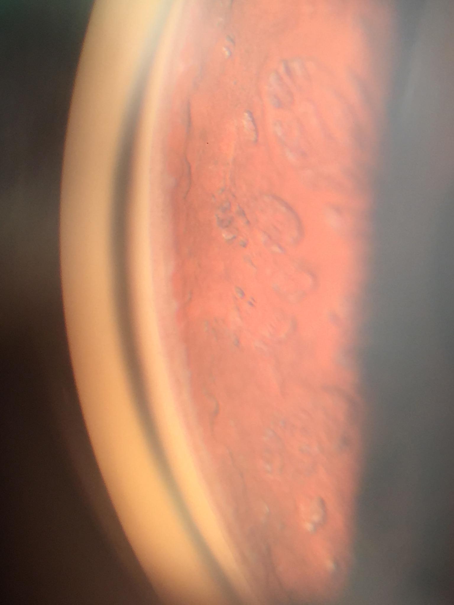 Ellex-CP INVISCO-postop image sans bleb